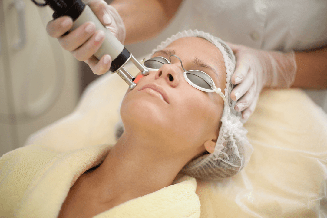 Levantamento facial a laser
